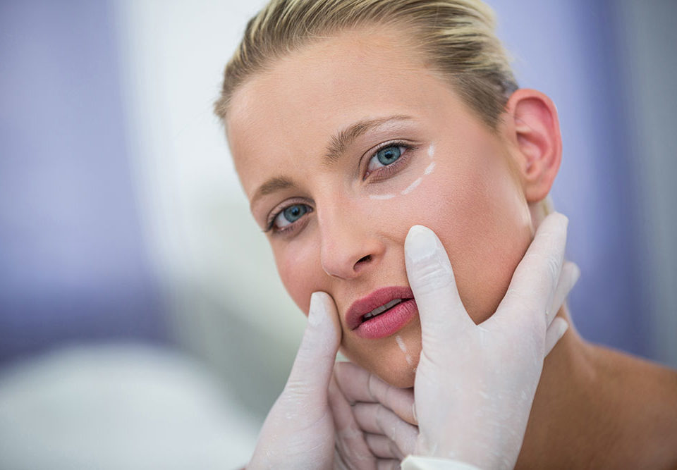 Lifting chirurgia viso